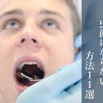 歯医者に聞いた虫歯にならないための方法11選